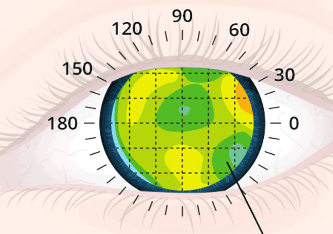 Lasik and Beyond Lasik Wavefront Analysis and Customized Ablations
