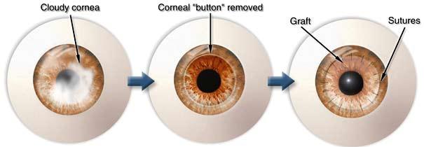 Corneal Transplant In India Centre For Lasik