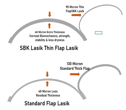 SBK thin flap Lasik vs Standard Lasik in delhi